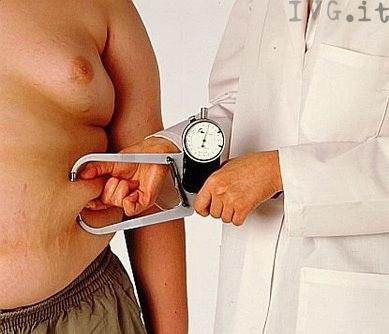 obeso obesità