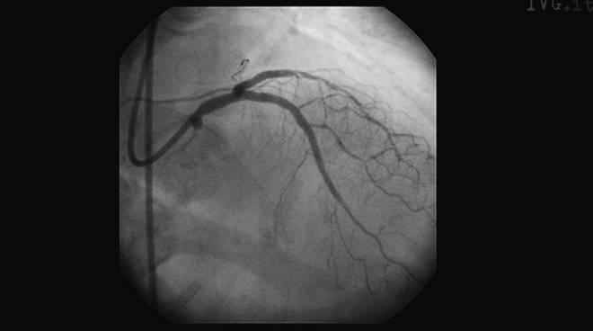 intervento cuore