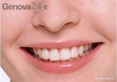 denti e sorriso