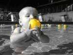 neonatale acquaciticita