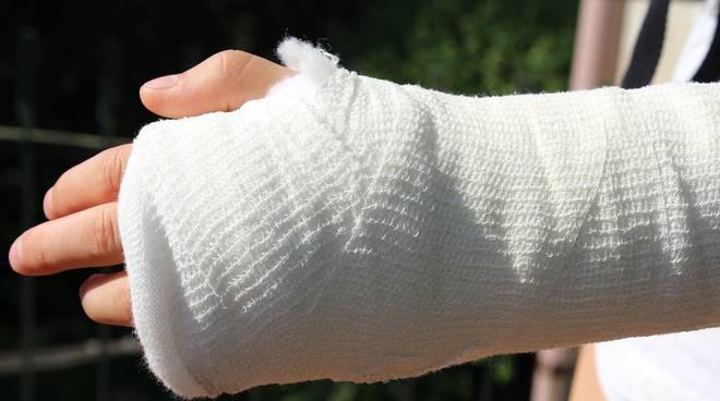 infortunio mano ortopedia gesso