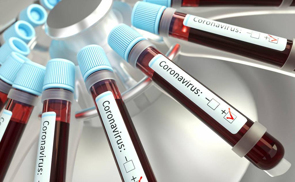 test sierologico covid