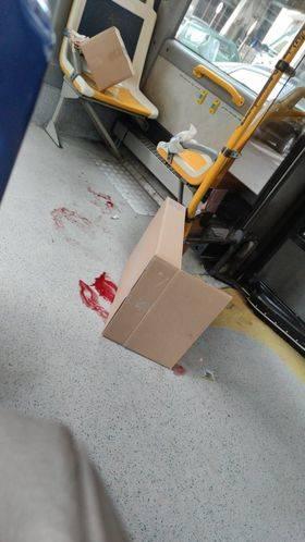 sangue sul bus