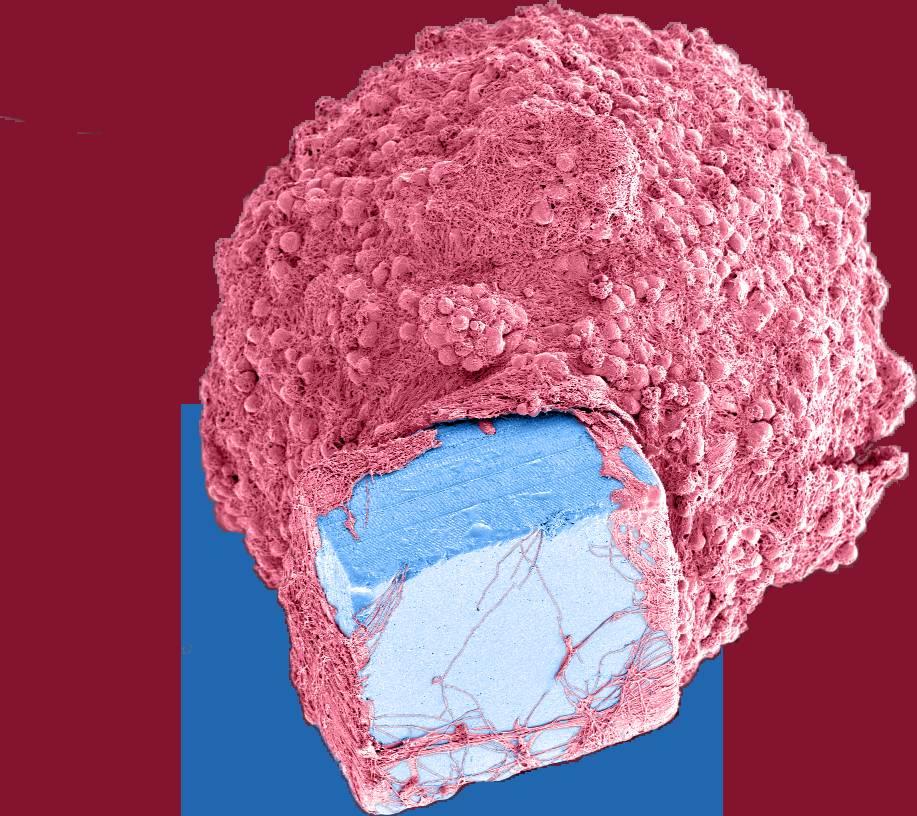 microchip cervello