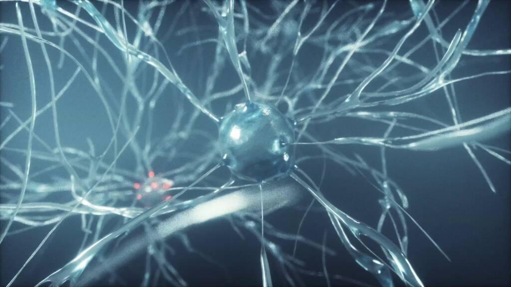 corticale startup iit cervello